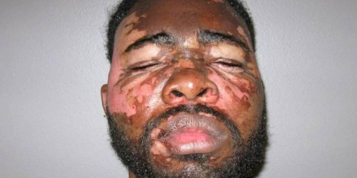 Entró armado a la casa de una mujer y terminó con serias quemaduras luego de que le arrojaran en la cara aceite caliente
