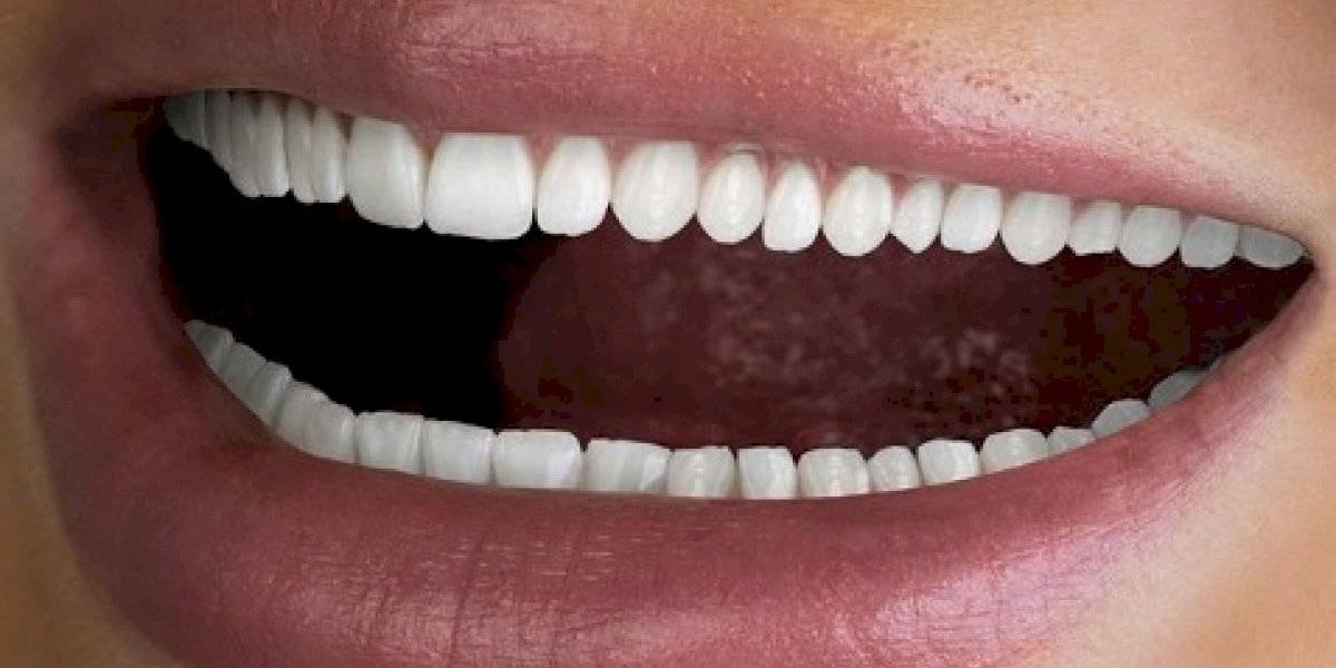 """""""No crece ninguno extra con esto ¿verdad?"""": compañía que vende kit para blanquear dientes recibe feroz troleo tras anuncio con boca de otro mundo"""