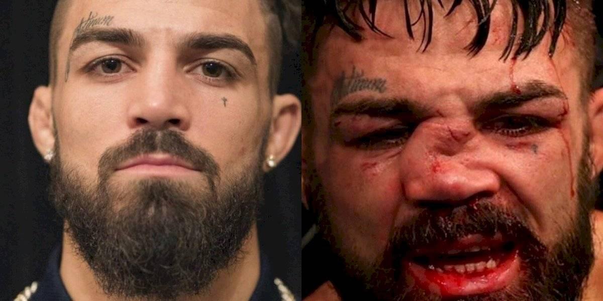 VIDEO: Peleador de UFC termina pelea ¡con la nariz destrozada!