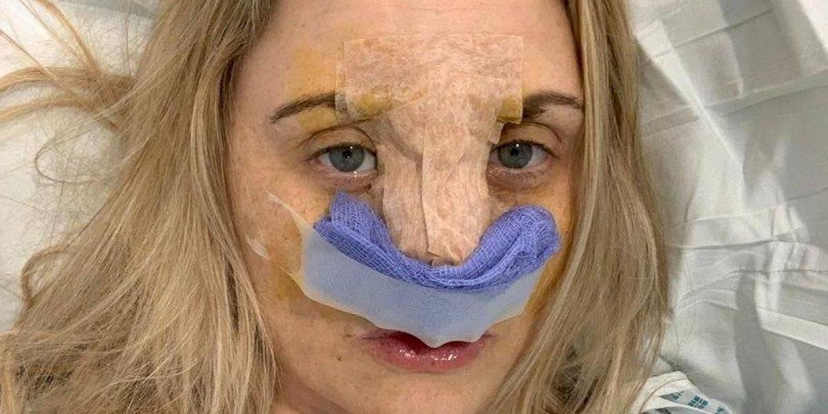 Mulher que fingiu doença mental para fazer cirurgia plástica de graça inicia crowdfunding para levantar o bumbum