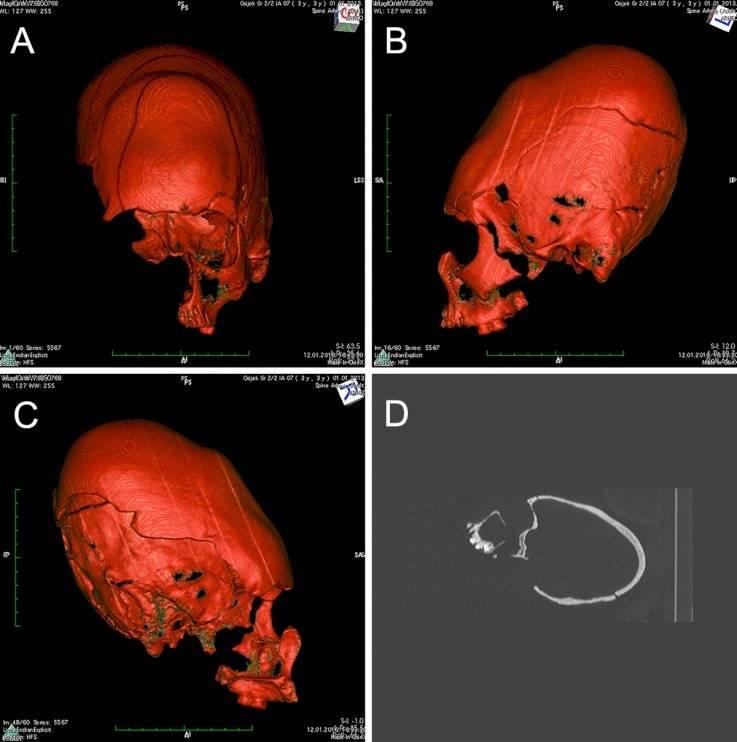 Ciencia Cráneos Croacia