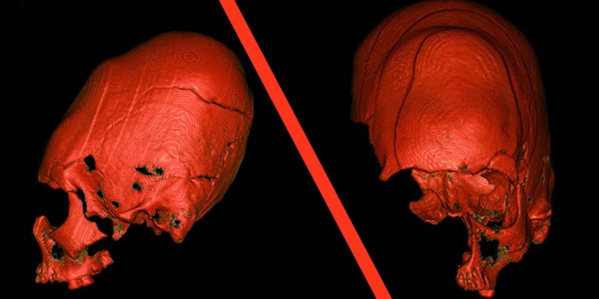 Esta es la verdad sobre los cráneos alargados de Croacia