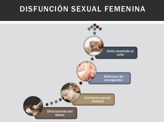 disfunción femenina