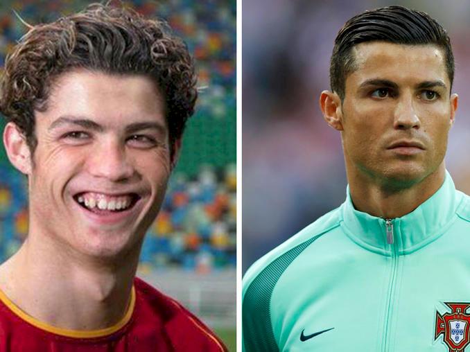 Cristiano Ronaldo antes y después