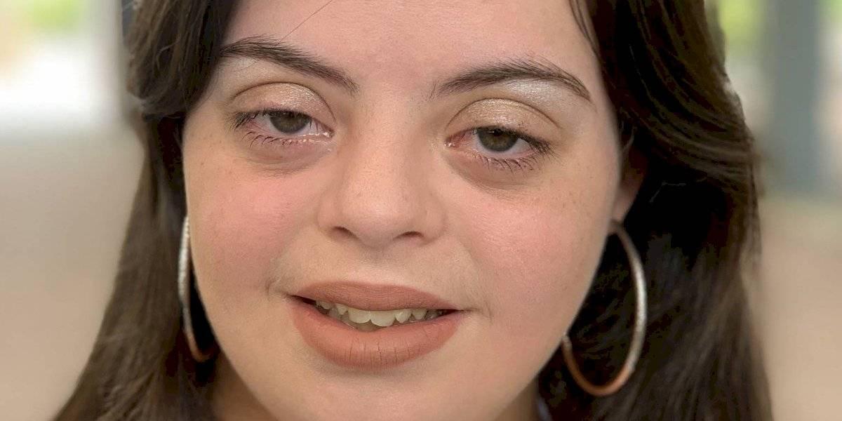 Modelo con Sindrome Down busca ayudar a niños con cáncer