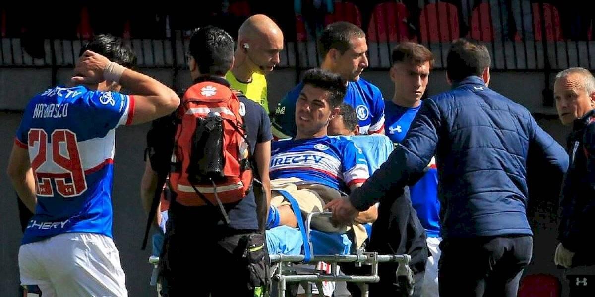 La UC no podrá reemplazar al lesionado Francisco Silva