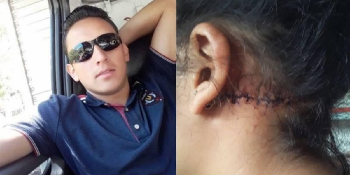 Joven denuncia a su novio por haberle propinado brutal ataque