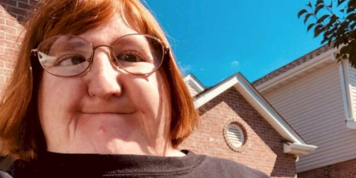 """""""Pareces un pez globo"""": le dijeron que era """"demasiado fea para sacarse selfies"""" y su respuesta conmovió a todos en Internet"""