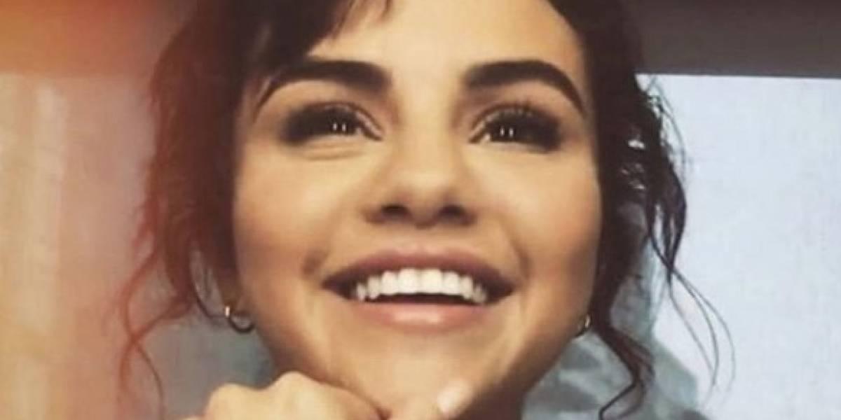Filtran la foto de Selena Gomez sin carillas estéticas