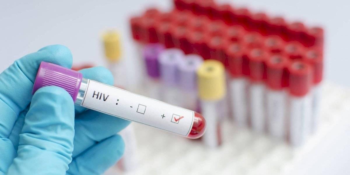 71 mil personas tienen VIH en Chile: un 87% sabe que convive con el virus