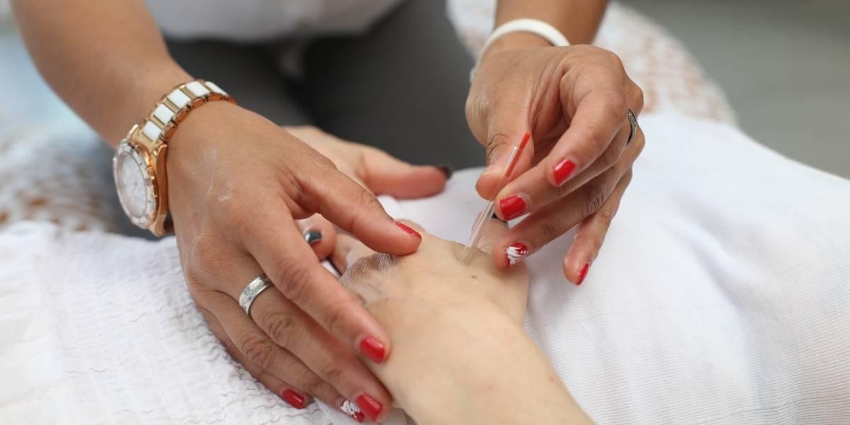 Quais os benefícios da acupuntura para a saúde? Especialistas respondem