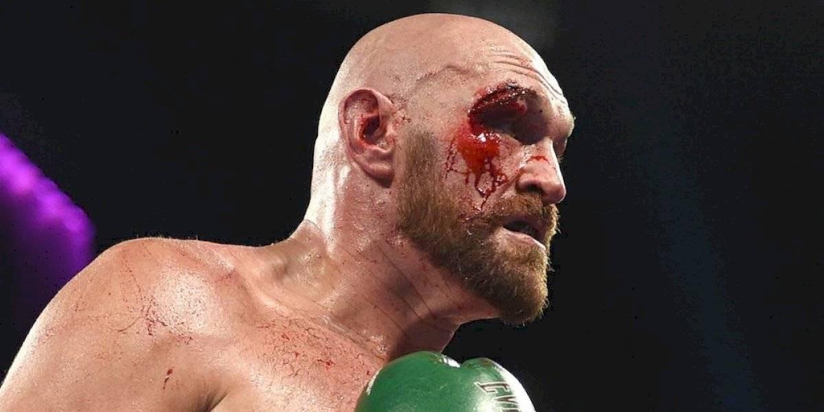 Tyson Fury sufre impresionante corte en el párpado derecho