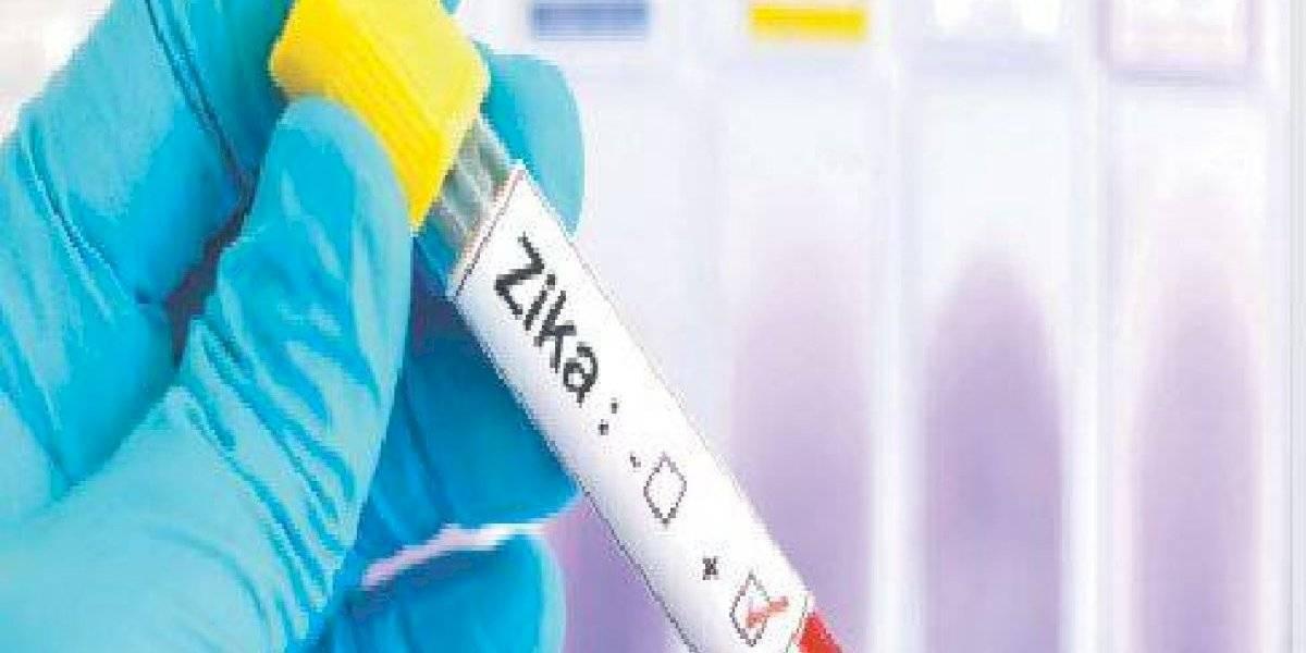 Virus del zika puede causar daño neurológico en adultos