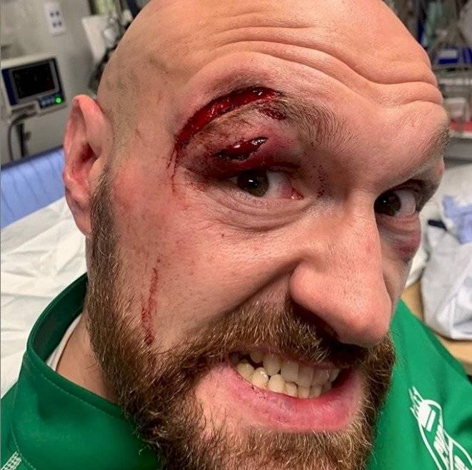 Tyson Fury sangrienta pelea Otto Wallin