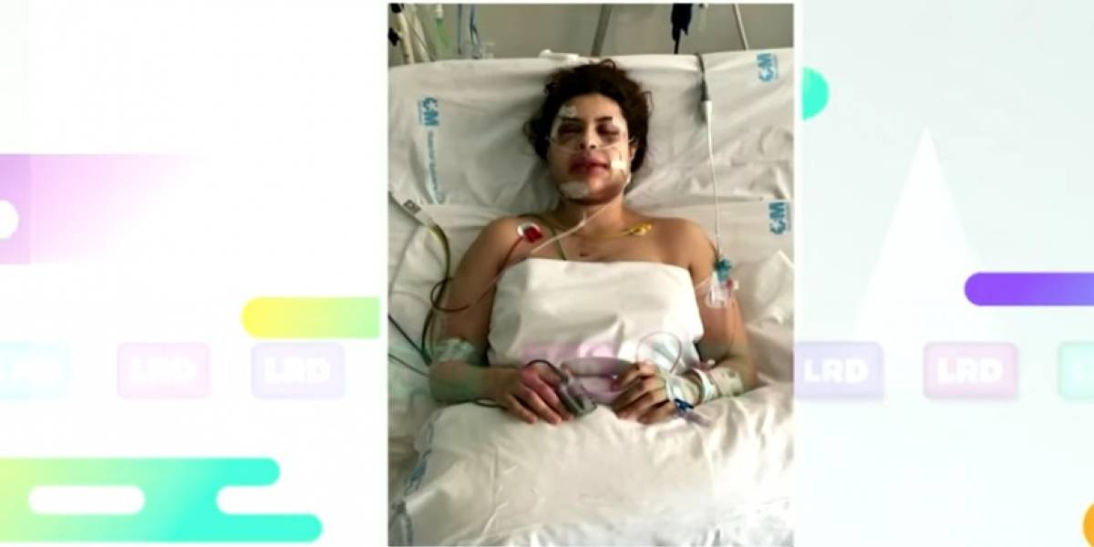 Cantante colombiana se recupera de 47 fracturas en su rostro