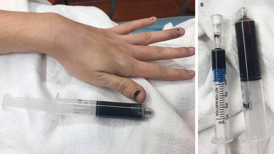 No hacerlo en casa: Una joven que se automedicaba cambió el color de su sangre
