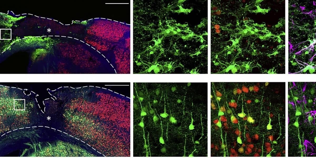 Prueban con éxito terapia génica para regenerar las neuronas pérdidas en accidentes cerebro vasculares