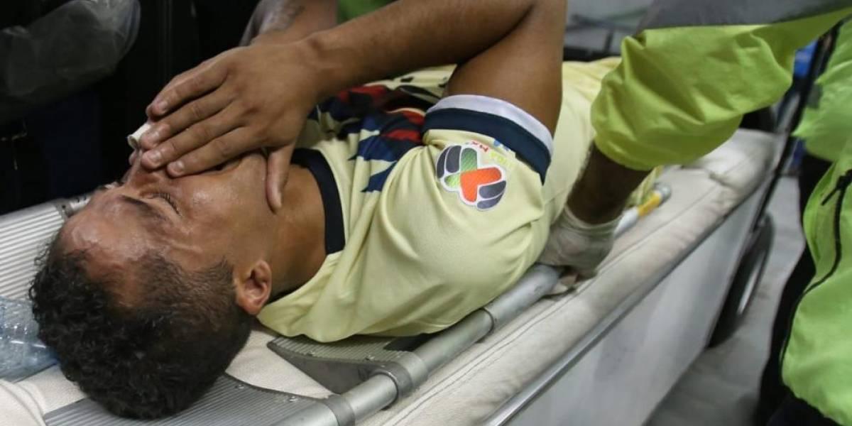 VIDEO. La escalofriante herida de Giovani Dos Santos en el clásico mexicano