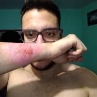 Argentino usa ralador para remover tatuagem do braço