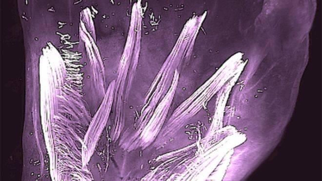 """Científicos descubren que bebes en el útero tienen músculos """"lagartijas"""""""