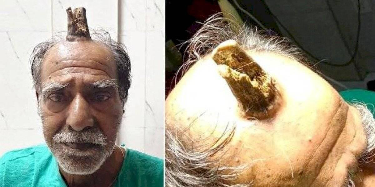 Homem remove 'chifre' que começou a crescer após acidente