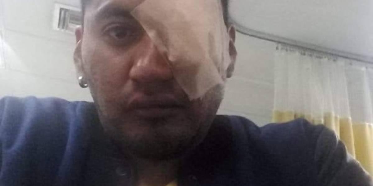 Paro nacional: Joven tiene riesgo de perder su ojo derecho tras impacto de bomba lacrimógena