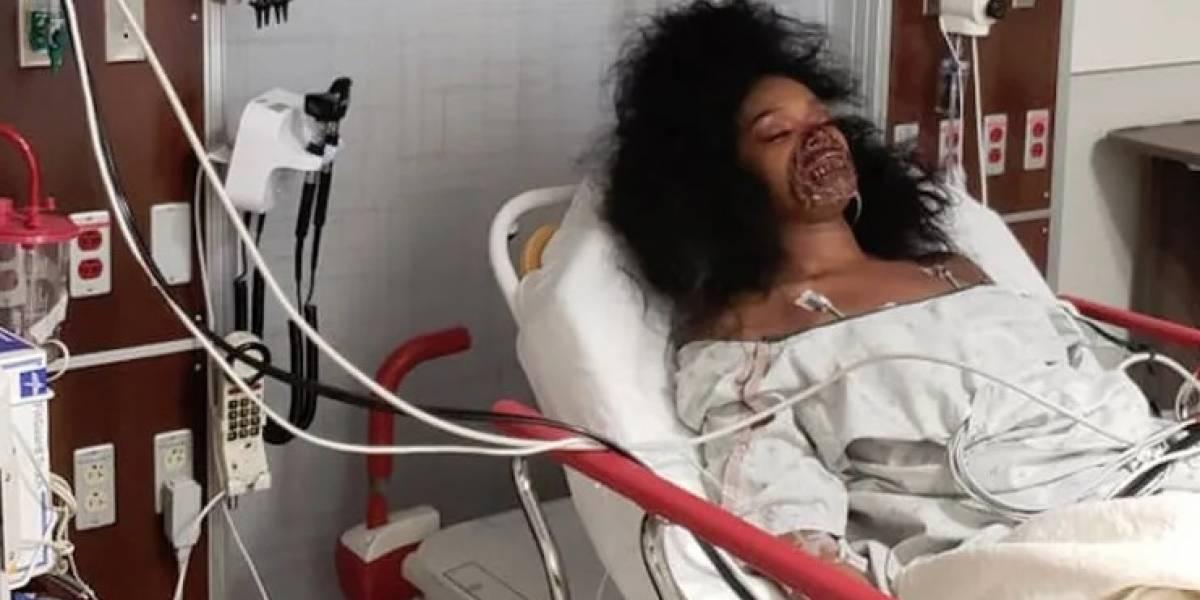 Confundieron su maquillaje con una grave enfermedad y casi la operan