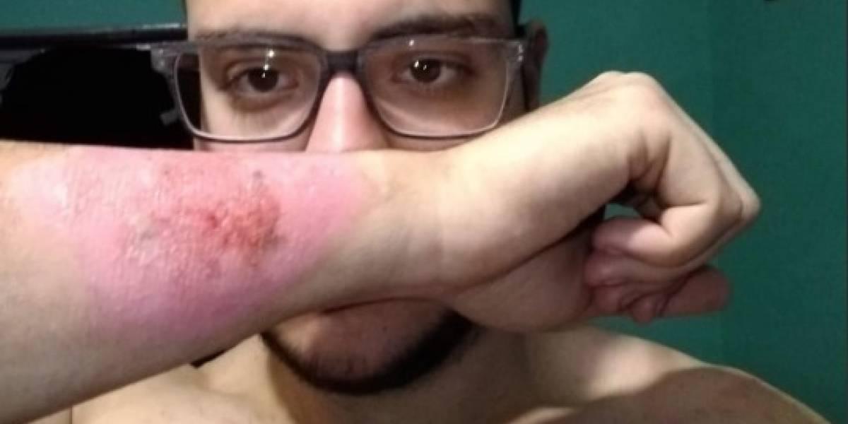 """""""Dolió y sangró muchísimo"""": hombre usa rallador de queso para sacarse un tatuaje del brazo"""