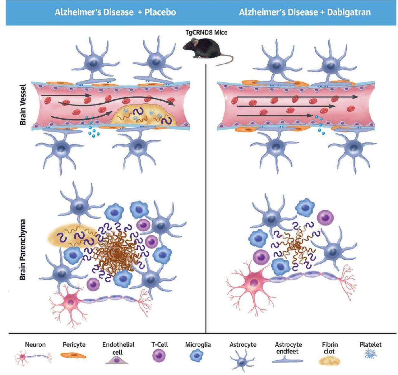 Un anticoagulante podría retrasar la aparición del Alzheimer