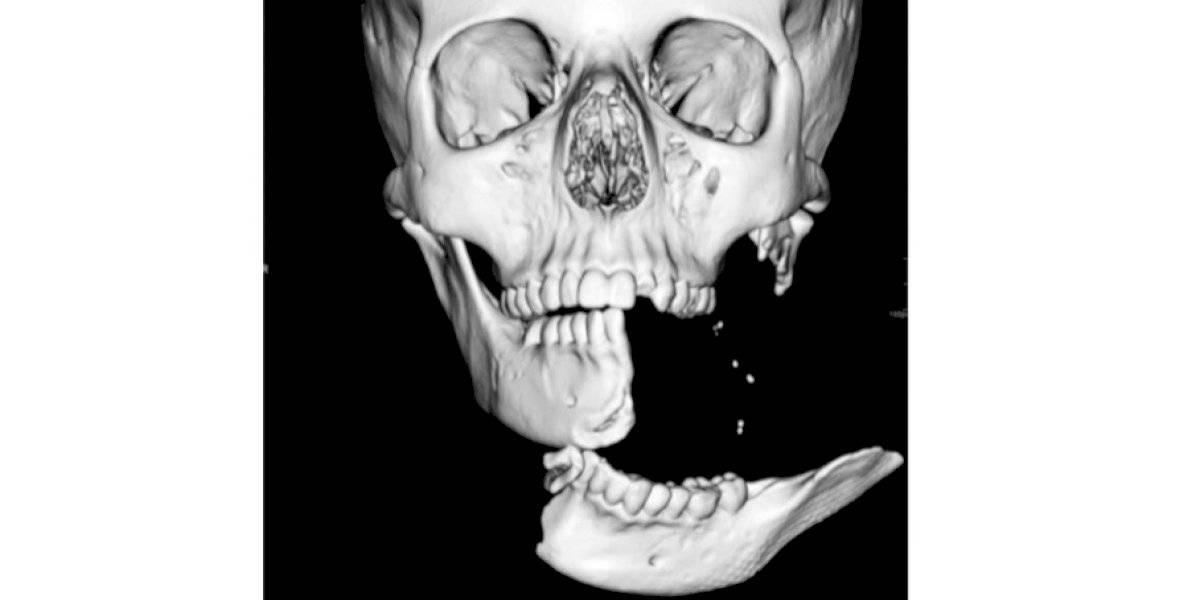 """""""Es una de las heridas más graves que he visto en una niña"""": menor de 15 años queda con la mandíbula colgando tras accidente en un caballo"""