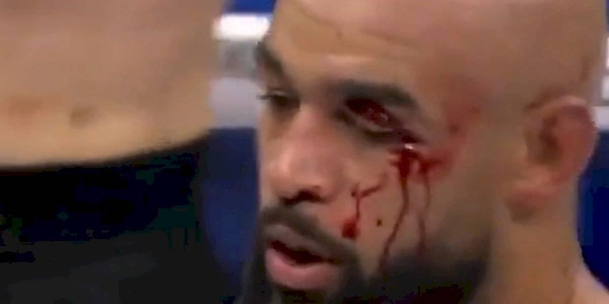 VIDEO. El escalofriante corte que sufrió un peleador de MMA