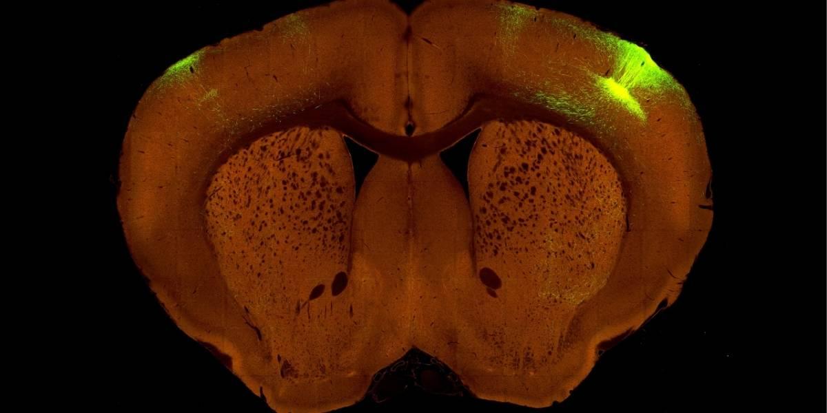 Este es el mapa más detallado de las conexiones de un cerebro