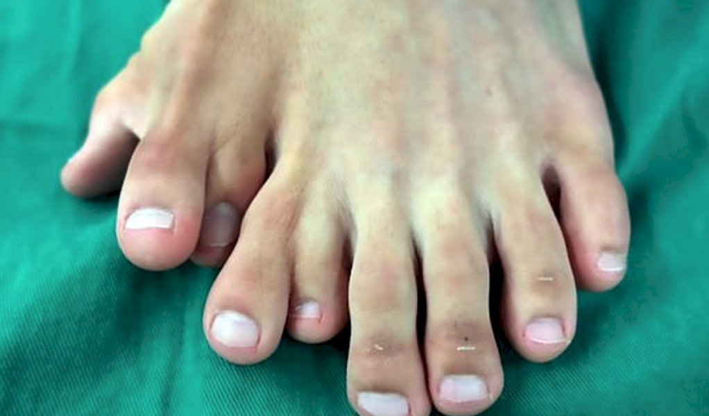 Joven con 9 dedos en un pie se sometió a cirugía para corregirlo y así quedó