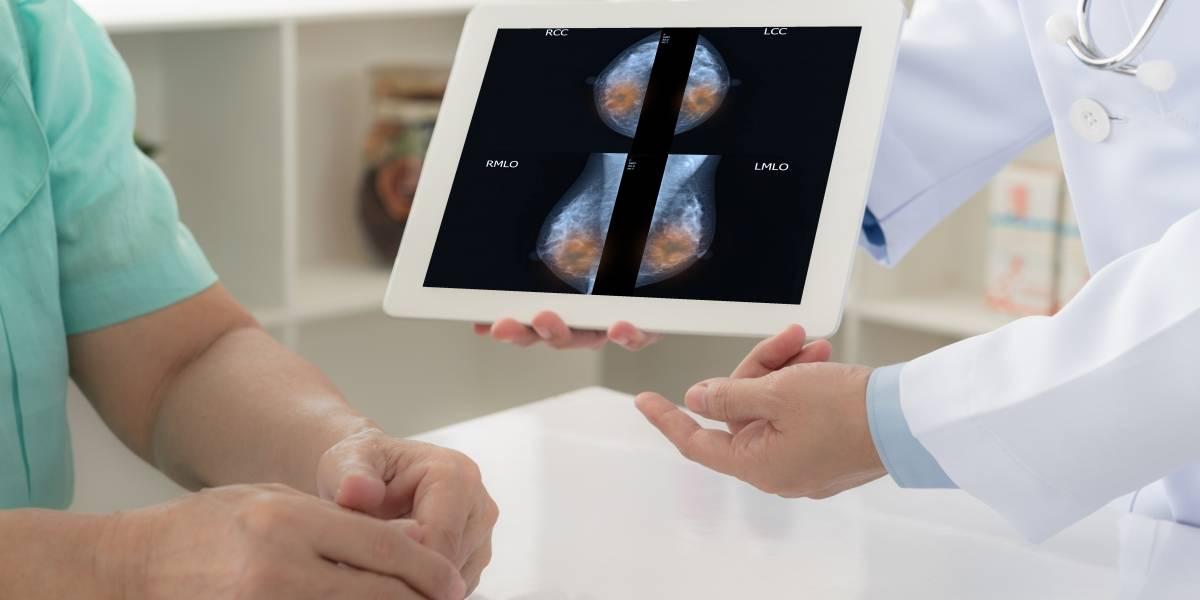 Programa de Profamilias ofrece mamografías gratuitas