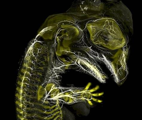 3-alligator-embryo-stage-13-nerves-and-cartilage