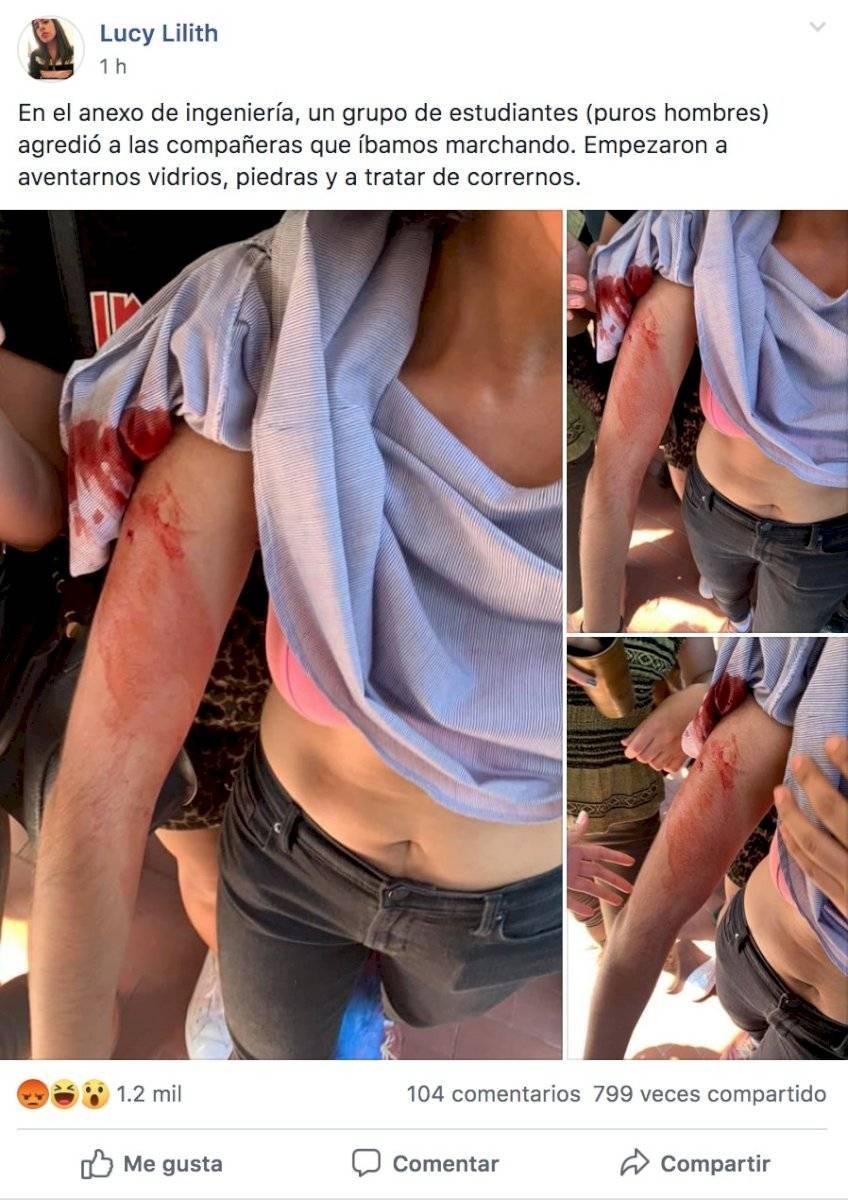 Estudiante herida en manifestación