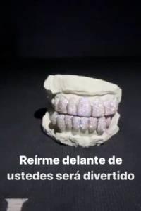 dientes el alfa