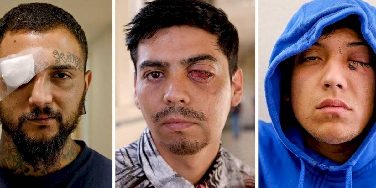 """""""It's Mutilation"""": el desgarrador reportaje del New York Times sobre el explosivo aumento de traumas oculares por culpa de disparos en medio de las protestas en Chile"""