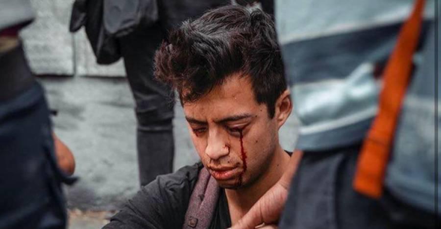 Colegio Médico rechaza uso de lacrimógenas por parte de Carabineros