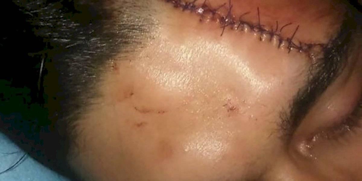 """""""Lo lanzó 3 metros más allá"""": ex """"Yingo"""" acusa que su hermano sufrió grave lesión en la cabeza producto del carro lanzaaguas"""