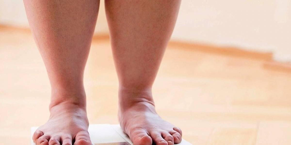 Pesquisa científica revela perigo desconhecido na perda de peso extrema causada pela cirurgia bariátrica