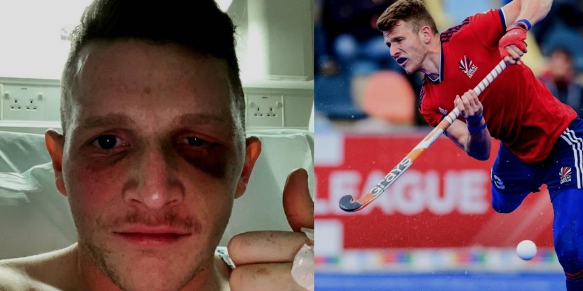 Jugador de hockey sufre escalofriante lesión y recibe más de 40 puntos