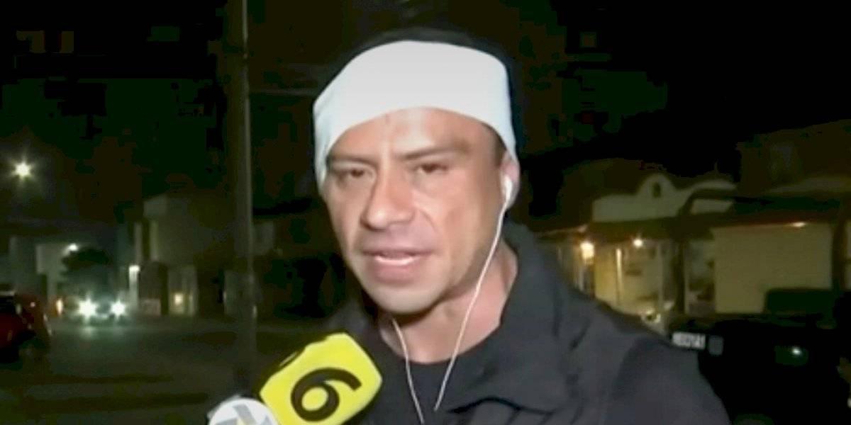 Choferes de combi agreden a reportero y camarógrafo en Coacalco