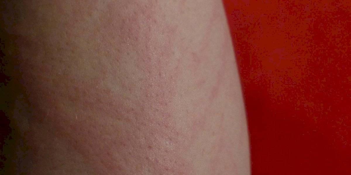 O incrível caso da mulher que tem uma rara alergia à própria saliva, suor e lágrimas