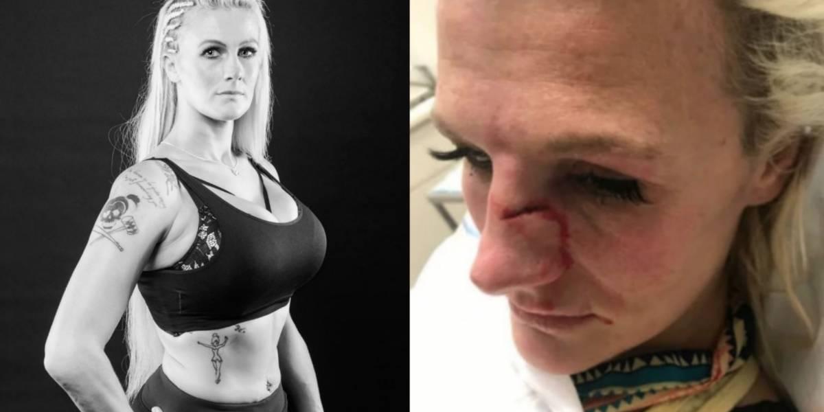 Peleadora de MMA es golpeada brutalmente por su pareja