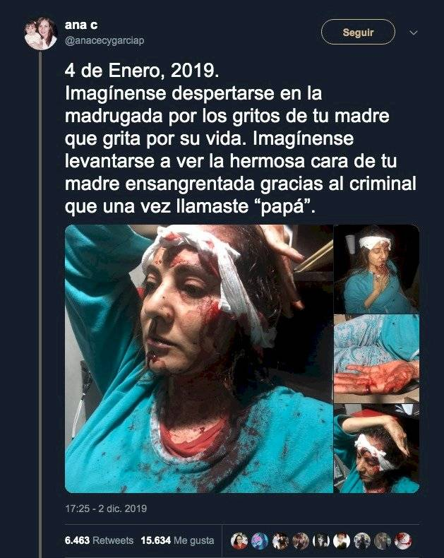 Abril Pérez Sagaón heridas