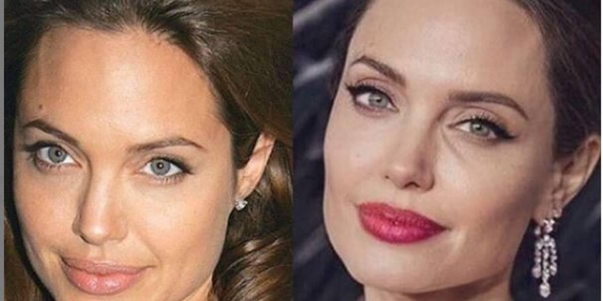 Angelina Jolie se ha sometido a varias cirugías en la cara y estas fotos lo comprueban