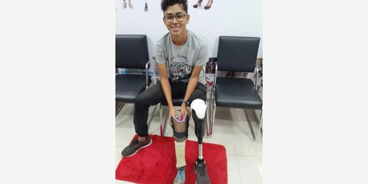 Jovem que fez perna mecânica com sucata de bicicleta ganha prótese