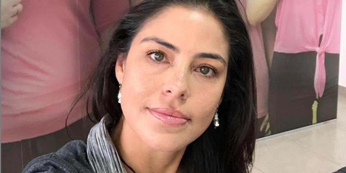 Exreina de Colombia mostró lo mal que le fue con procedimiento en sus labios