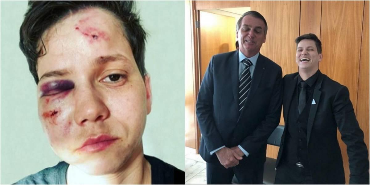 Após sofrer agressão, youtuber pró-Bolsonaro Karol Eller presta depoimento no Rio